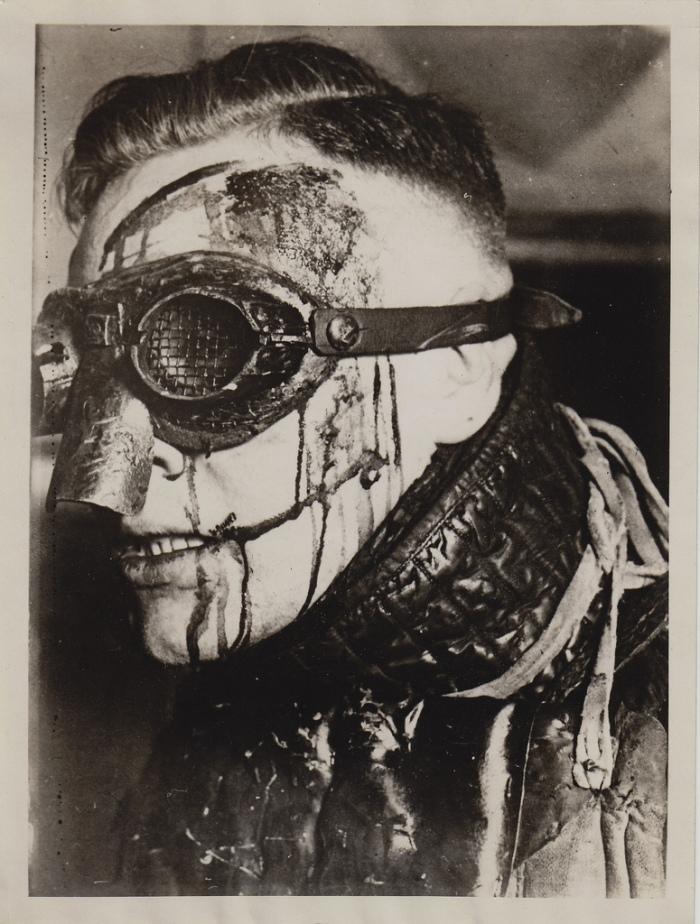 Παλαιότερα ο τραυματισμός κατά τη διάρκεια της μονομαχίας θεωρούνταν μεγάλη τιμή. Μερικοί τραυματισμοί ήταν πολύ σοβαροί.
